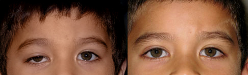 oculoplasty before after