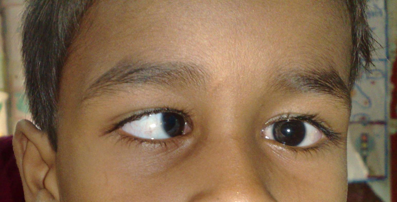 pediatric squint