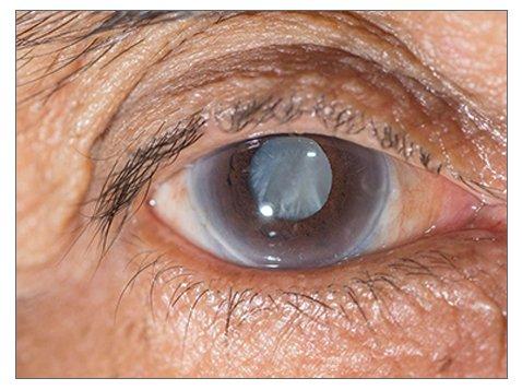 glaucoma-eye